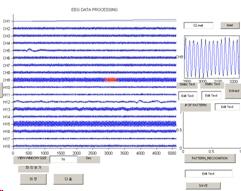 EEG_amp2.jpg
